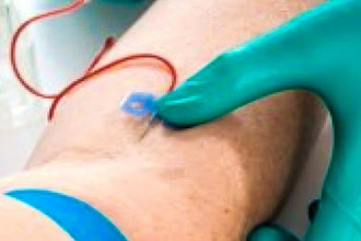 IV Therapy and Blood Withdraw