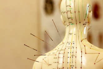 Acupuncture for Stroke, Recovery and Rehabilitation
